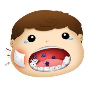 子供 虫歯 イメージ